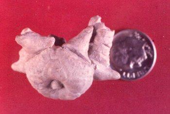 Delocrinus subhemisphericus