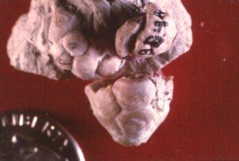 Terpnocrinus ellipticus